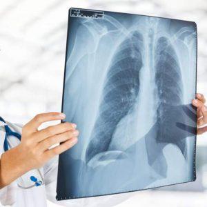 228-radiografia